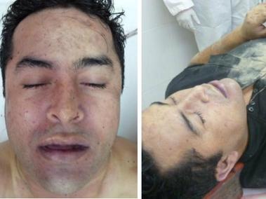 """El cuerpo sin vida de """"El Lazca"""" fue rescatado de la funeraria por un comando armando"""