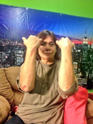 Mujer víctima de abuso policíaco interpone queja ante CDHEC