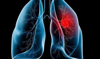Se posiciona cáncer de pulmón como segunda causa de muerte mundial