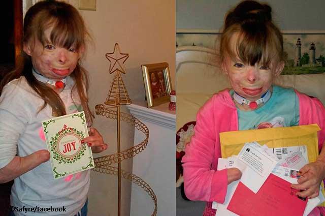 Niña que sobrevivió a un incendio conmueve con su deseo de Navidad