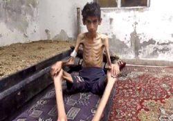 Niños de Siria sobreviven comiendos hojas, insectos y carne de perro