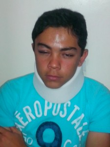 Menor golpeado por ex sarapero