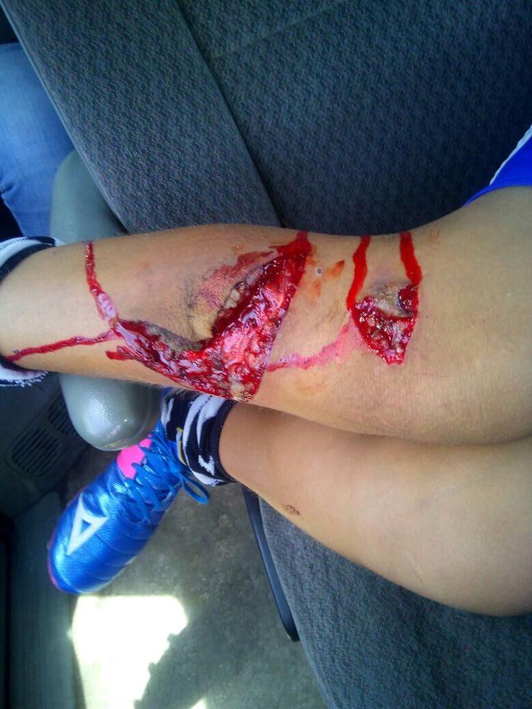 Omisiones en Torreón causan accidente de un menor