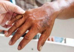 Confirma Salud dos casos de lepra en Coahuila